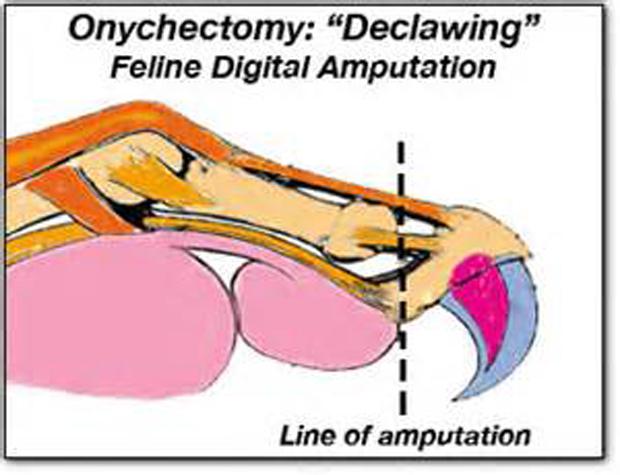 ONychectomy